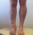 Klippel_Trenaunay_Syndrome_2